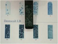 デントカルトLB(むし歯を進行させるラクトバチラス菌の培養検査)