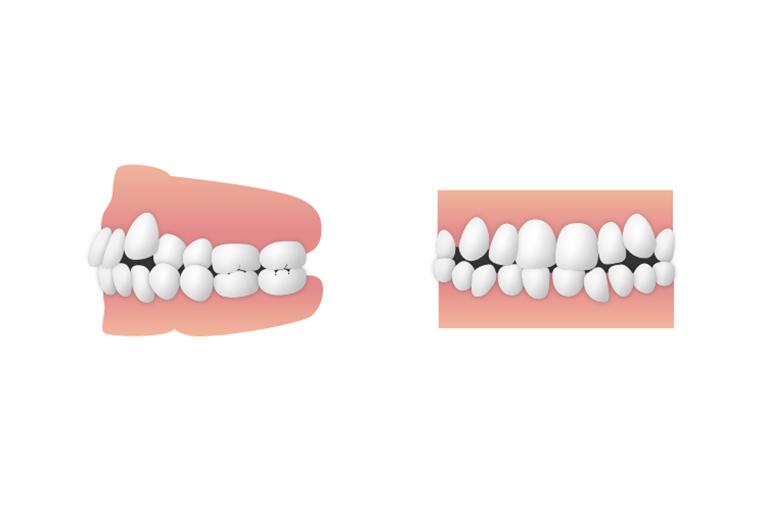 八重歯・乱ぐい歯